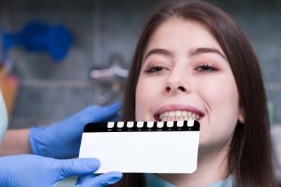 Wybielanie zębów sposobem na piękny uśmiech