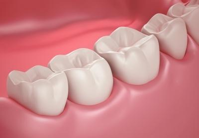 Czy implanty zębów są dobrym rozwiązaniem?