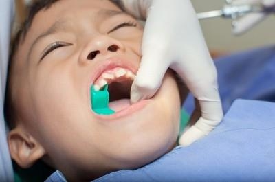 Postępowanie po ekstrakcji zęba